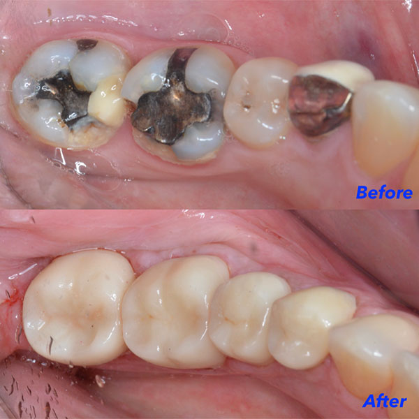 Dental Crowns at Raptou Family Dental