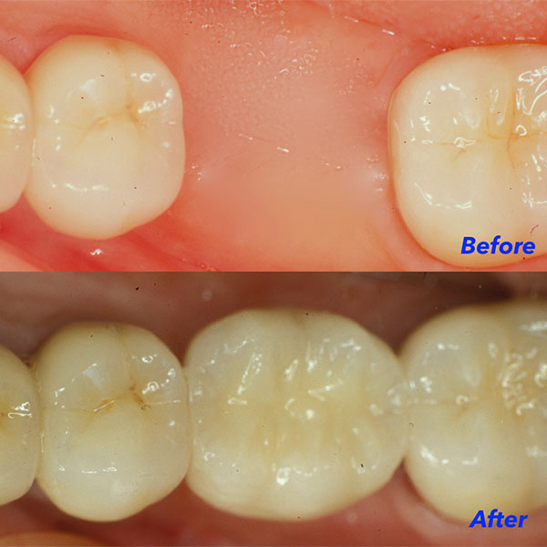 Single tooth replacement at Raptou Family Dental, Columbus, OH
