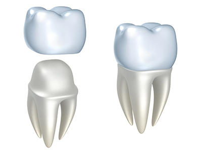 All-Ceramic Crowns at Raptou Family Dental, Columbus, OH