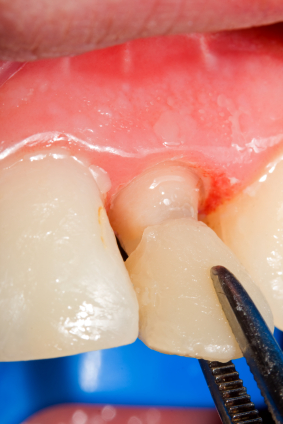 How Are Teeth Prepared for Veneer Placement?