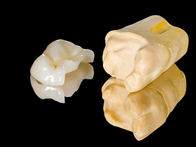 Dental inlays and onlays by dentist in Columbus, OH.
